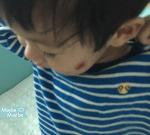 137. 아기 단순포진... 엄마랑 뽀뽀도 금지 ㅠㅠ [+669]