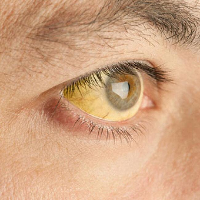 간경화 초기증상 8가지 - 방치하면 안되는이유