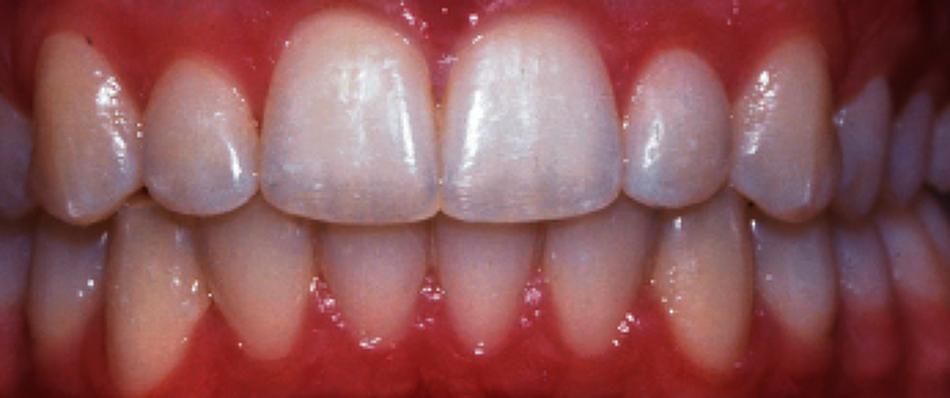 건강한 치아 유지하기 - 치아보험 활용