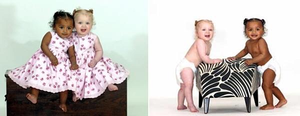 각각 완전한 백인, 흑인으로 태어난 쌍둥이