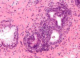 염증이 있는 전립선 조직