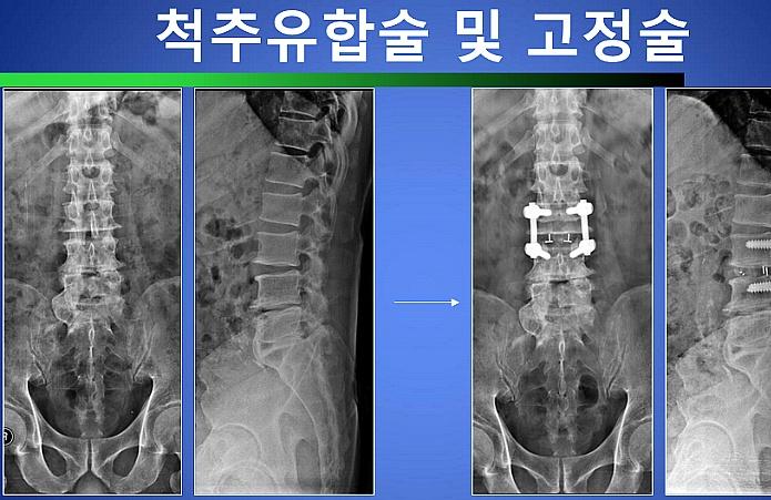 척추관 협착증 수술치료방법 척추유합술 및 고정술