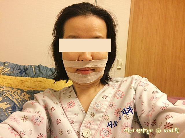 양악수술 핀제거 수술 후기